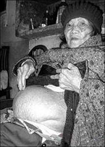 300 phụ nữ mang thai hóa đá trong y văn thế giới