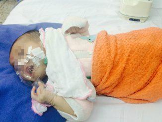 Không tiêm văcxin, nhiều trẻ mắc bệnh ho gà thể nặng 3