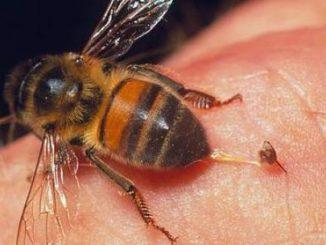 Xử trí khi bị ong đốt 8