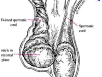 Hỏng 'bi' vì chủ quan với chứng đau tinh hoàn 11