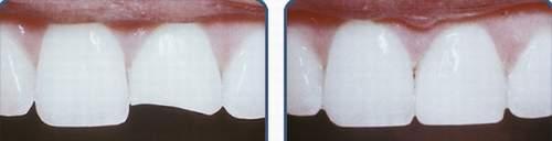 Trám răng, khi nào cần?