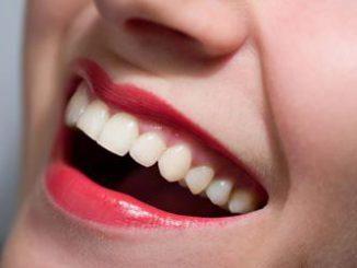 Làm sao để có hàm răng trắng sáng 10