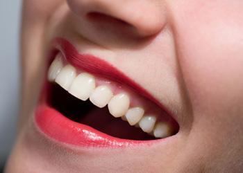 Làm sao để có hàm răng trắng sáng